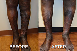 Vein Doctors Before and After